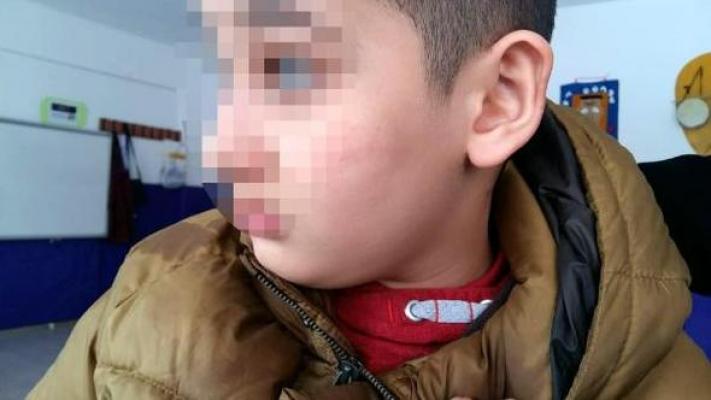 Ankara'da Otizmli Öğrenciye Öğretmen Şiddeti!