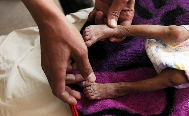 İHH İnsani Yardım Vakfı Genel Başkanı Yıldırım: Yemen'de çocuklar bir deri bir kemik kalmış durumda