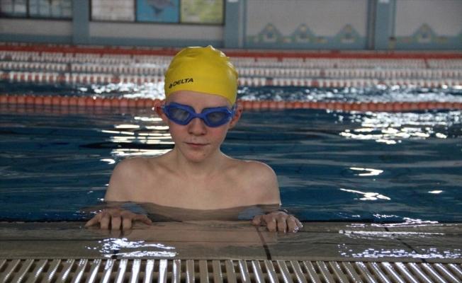 Albinizm hastası Hüseyin Ali azmiyle örnek oluyor