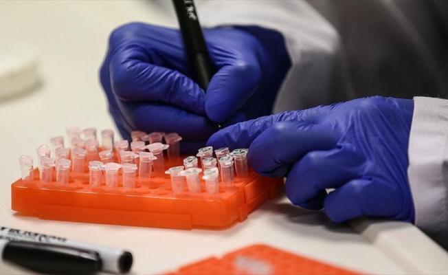 Türkiye'de 12 'Kovid-19 aşı' çalışması yürütülüyor