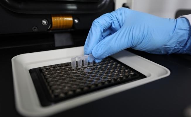 Koronavirüs Bilim Kurulu Üyesi Prof. Dr. Şener: Türkiye'de Delta varyantı yaygın olarak görülmeye başladı