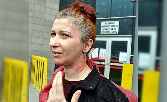 Eskişehir'deki kimyasal maddeyle yaralama davası