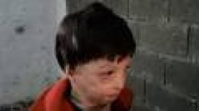 Suriyeli minik Mahmud'u varil bombası yaktı